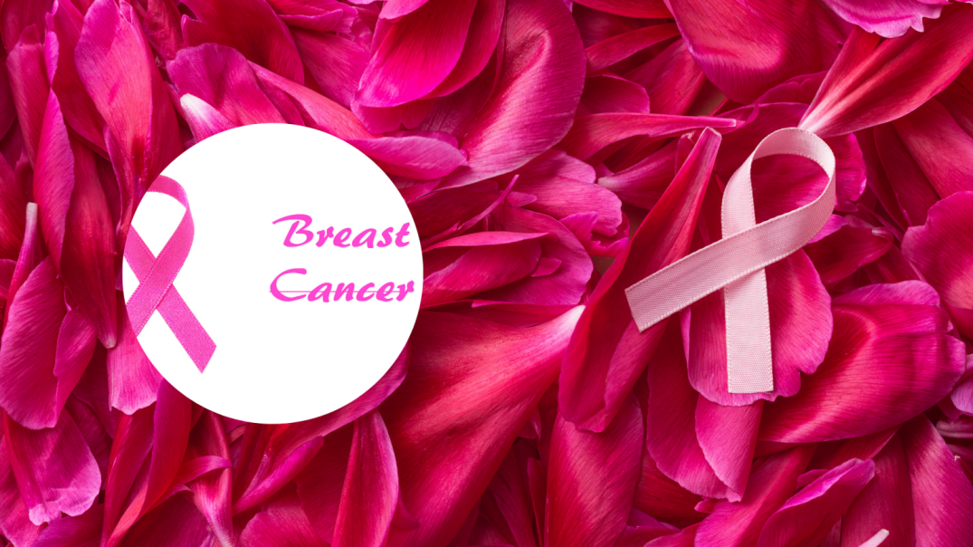 Breast Cancer medical second opinion