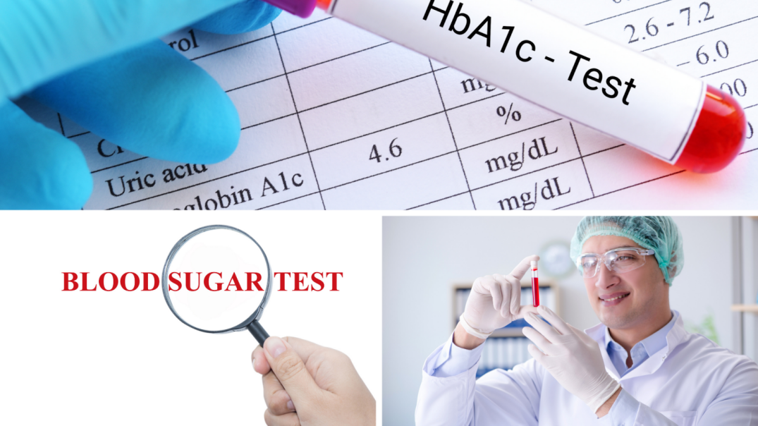 Blood sugar medical second opinion