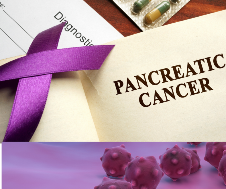Pancreatic cancer Medical Consultation online
