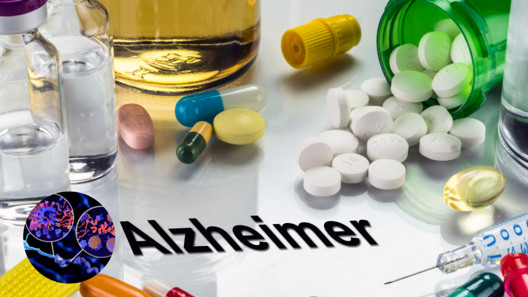 Alzheimer's  medical second opinion