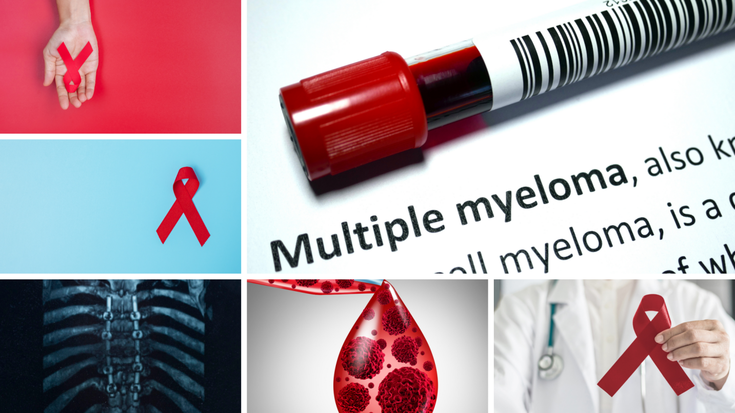 Multiple Myeloma medical second opinion